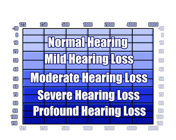 sensorienural hearing loss